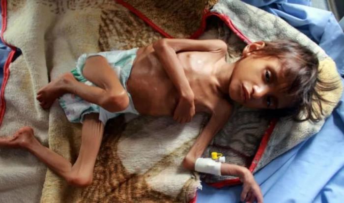 الجرائم الحوثية.. كيف تفاقم أعباء الجوع والفقر؟