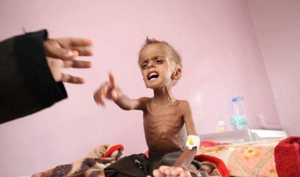 الصحة العالمية: سوء التغذية يبلغ مستويات قياسية في اليمن هذا العام