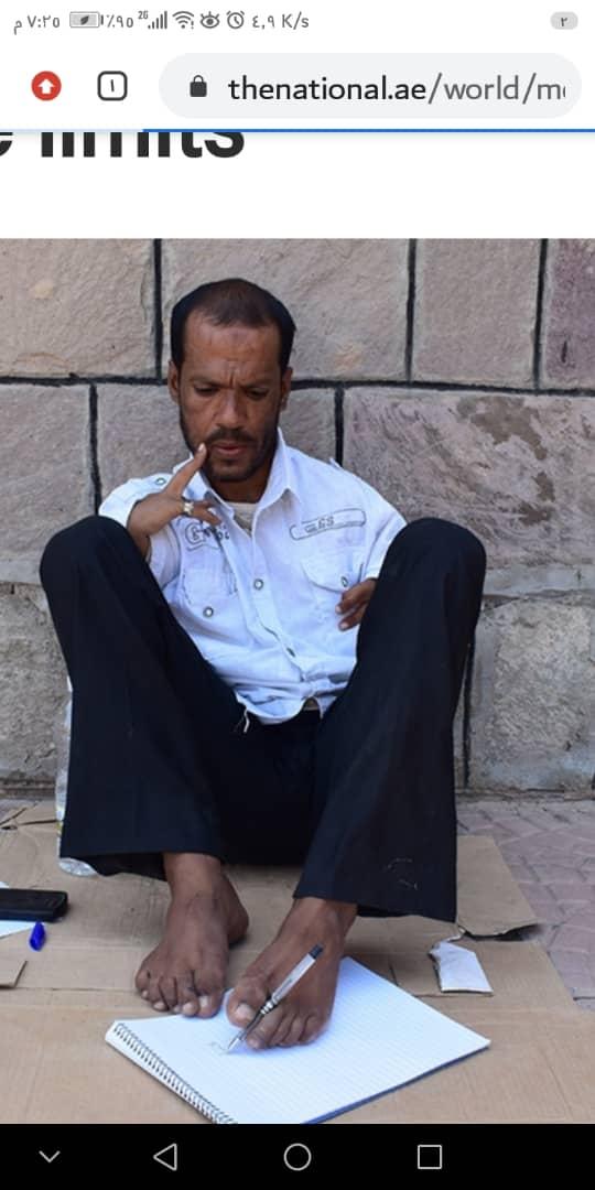 قصة يمني ولد بغير ذراعين تغلب على معاناة الحياة وتعلم الكتابة بقدميه والتحق بالجامعة بمنطقة الازارق بمحافظة الضالع